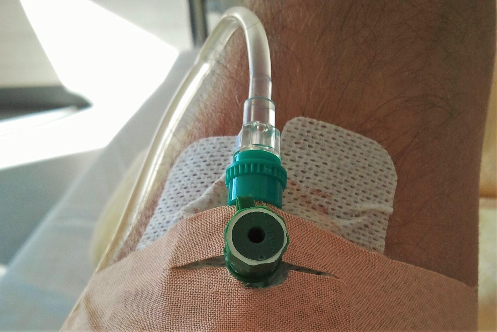 Krankenhaus Berichte eines Verunfallten